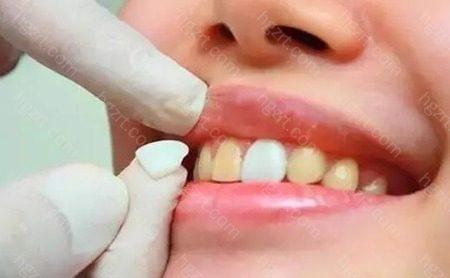 瓷贴面是目前流行的牙齿美容修复方法