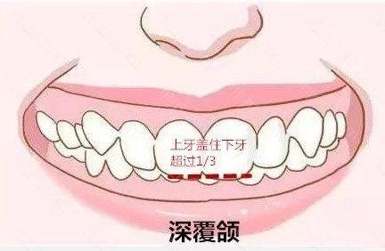深覆合医生会通过开唇、提唇、打唇、按摩舌根、伸舌等方法使上下唇尽量紧密地闭合