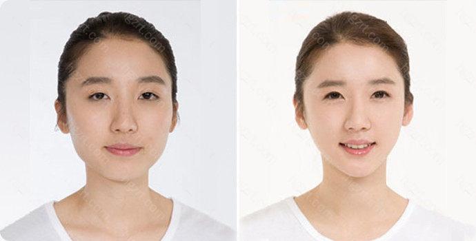面部抽脂的价格大约是每次人民币5000至20000元