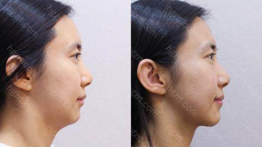 面部吸脂的恢复期取决于每个人的恢复情况和术后肿胀程度