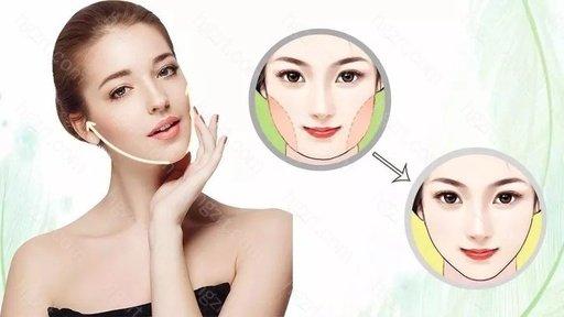 脸部抽脂术是一种美容手术