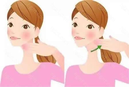 脸针主要针对咬肌肥大造成的脸宽问题