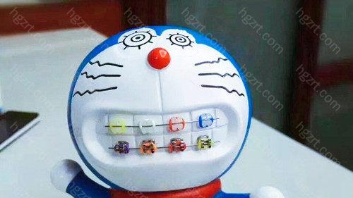 九江牙齿矫正哪家医院好?如果你想做正畸功课
