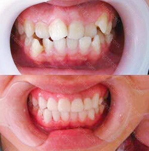 口扫仪的使用摆脱了传统牙齿取模的痛苦