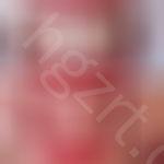 九江牙齿矫正哪家医院好?这几家技术高,案例多值得参考!