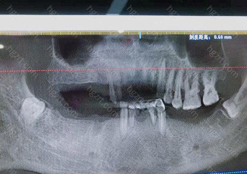 中诺口腔医院种植牙收费价格不高