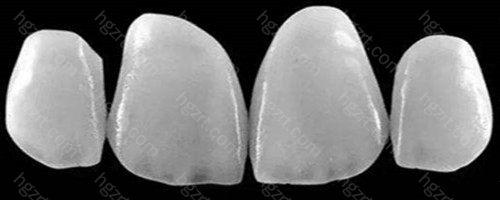 树脂贴面可恢复牙齿的表面形态和基本颜色