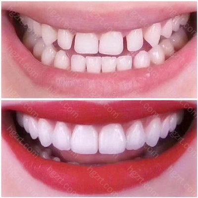 一般来说刚做完牙贴面都有一个适应期