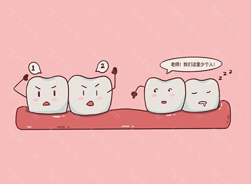 近期有很多牙齿缺失患者问我们:瑞士士卓曼blt种植体怎么样?是士卓曼旗下的产品吗?blt种植体和iti有区别吗?我们该如何选择才是好的?