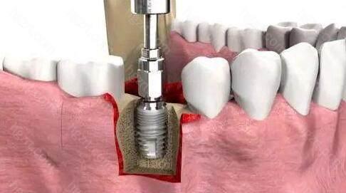 可以满足不同牙齿缺失患者的种植需求