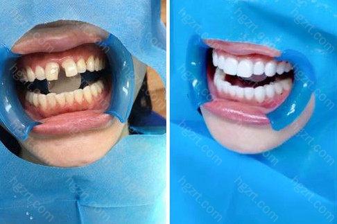 冰瓷牙贴面美牙是一款新型的牙齿美容修复产品