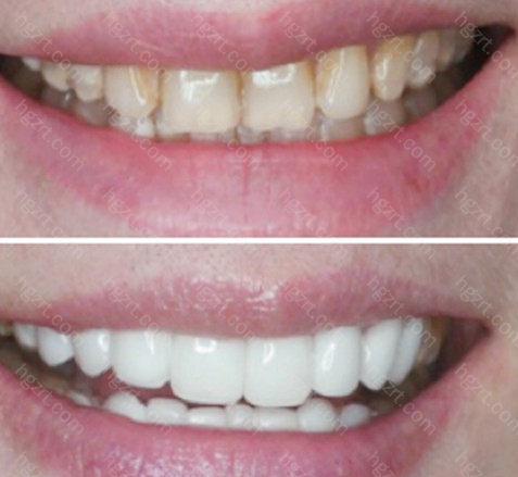 会增加牙贴面的使用寿命呢