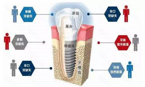 台州种植牙多少钱一颗?
