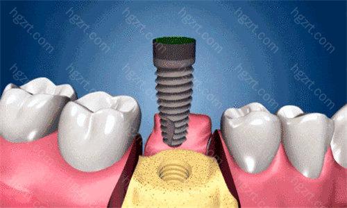 患者可根据自己的牙齿情况和经济情况选择适合自己的