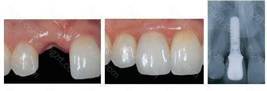 需要术前对身体和牙齿进行各种检查才行