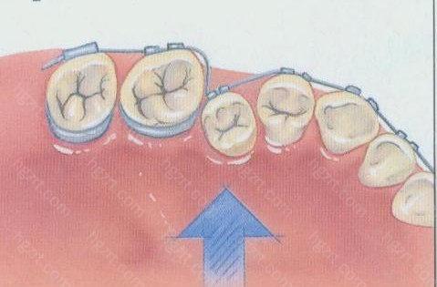 百色牙齿矫正参考价格表