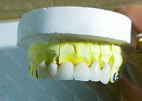"""几乎不会被看出""""假牙""""的痕迹"""