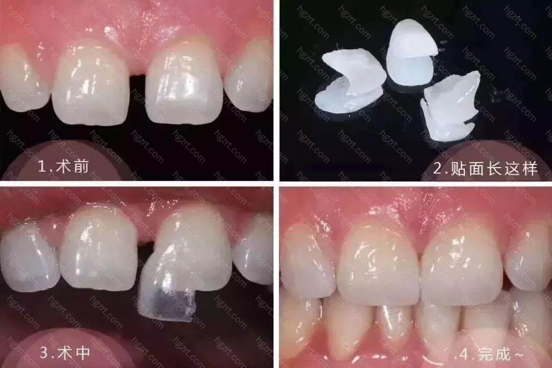 那就是牙齿贴面牢固吗?大概可以维持多久?今天我们就一起来了解下