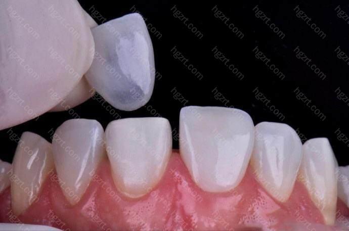 能够牙贴面牢牢的固定在我们的牙齿上