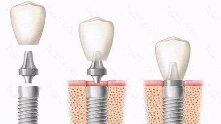 就以种植牙来说吧,私人牙科报价基本上包含了种植体、基台、牙冠以及其他杂七杂八的所有费用相加起来,一次性告诉患者整体报价以及治疗流程。而医院的收费是按照项目来收费的,比如种植体一个价格、牙冠一个价格,种植另外费用还要另算,单价看起来不是很高,实际所有费用相加起来,报价跟私人牙科相差无几。