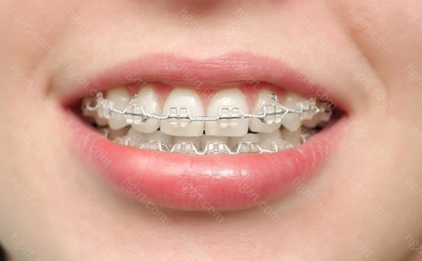 在厦门做矫正牙齿的费用是多少钱?该到哪一家做牙齿矫正才能便宜又好?今天我们就一起来了解下