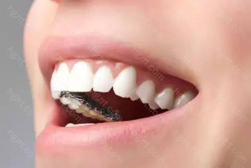 舌侧矫正是将牙套内置牙齿内侧
