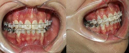格伦菲尔牙齿矫正靠谱吗?