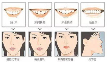 牙齿矫正大概要花多少钱你们知道吗?小编来给大家安利一下牙齿矫正费用大全