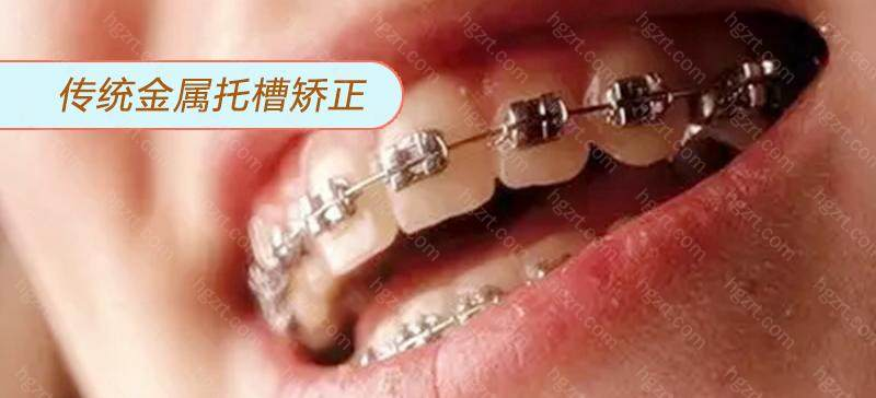 金属矫正适用于各种牙齿问题
