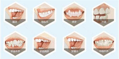 """在石家庄想做牙齿矫正的小伙伴是不是都有""""石家庄整牙正畸哪个医院好""""这样的疑问?那就一起来了解下石家庄矫正好的牙科医院吧!"""