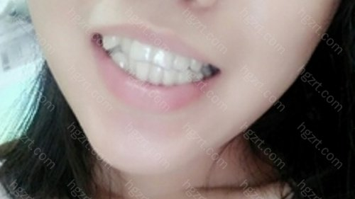 技术特色:擅长做数字化隐形牙齿矫正