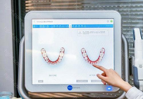 在赛弗口腔可以看到与自己牙齿情况接近的病例作为参考