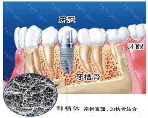 已成为越来越多牙齿缺失患者的首选修复方式