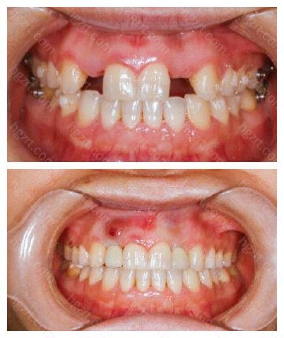 术后患者对洛阳牙大夫口腔的种植牙技术表示非常满意