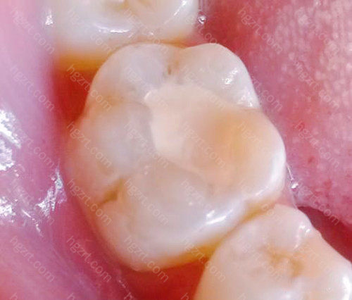 随便一个牙医都能搞定