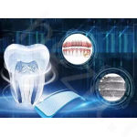 公布福州口腔医院种植牙费用,看种一颗牙到底需要多少