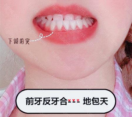 想知道地包天牙齿矫正的适宜年龄是多少