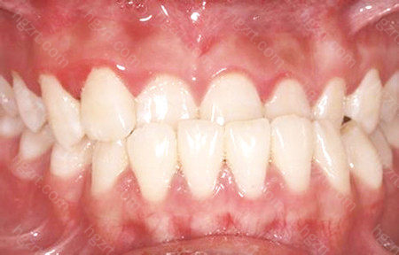 上述就是地包天牙齿矫正的适宜年龄是多少的相关介绍