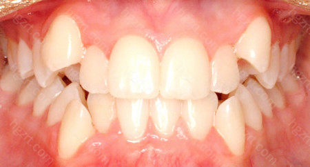 这个时候保持口腔卫生一方面还需要及时矫正牙齿问题