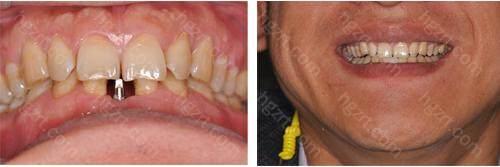 并且佳冠口腔的种植牙价格要低于其他同等级的牙科哦!