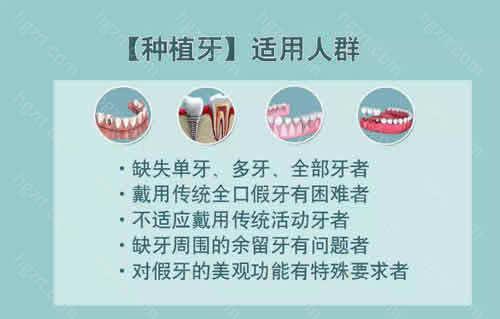 今天小编就来给大家公布在成都做一颗种植牙多少钱