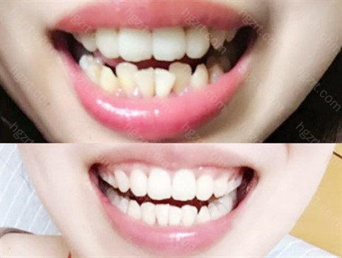 广州矫正牙齿医院比较好的是?想矫正却不知道去哪的小伙伴不要着急