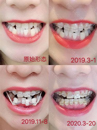 不仅能解决牙齿的使用问题