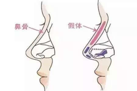 鼻综合手术后饮食推荐?