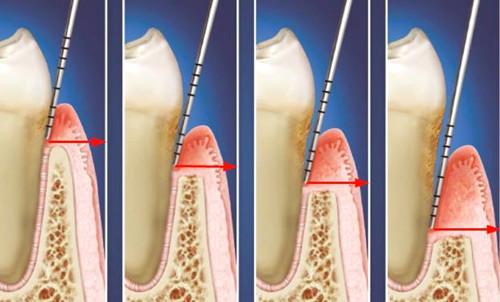 牙周袋深度三级分类代表牙周炎的四个分期