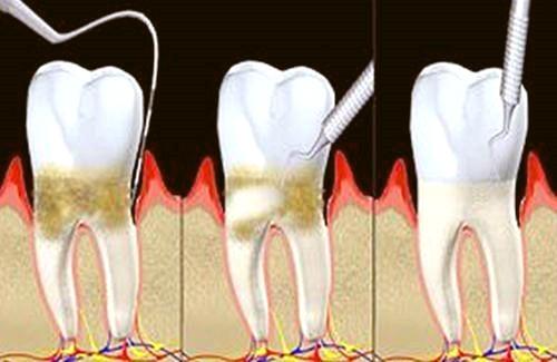 牙周袋怎么治疗?