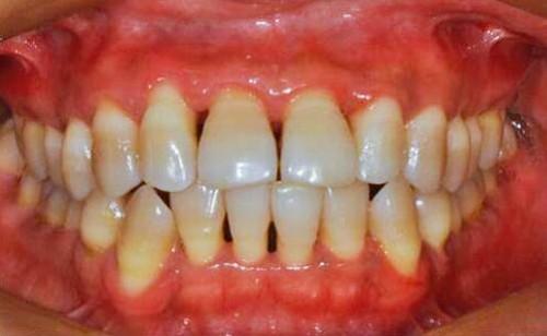 牙周袋深度三级分类代表牙周炎的四个分期,怎么治疗看这里!