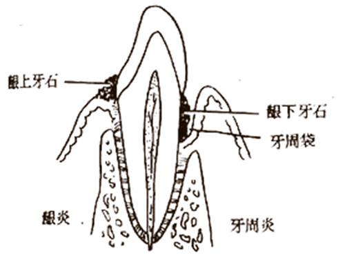 牙周袋深度三级分类