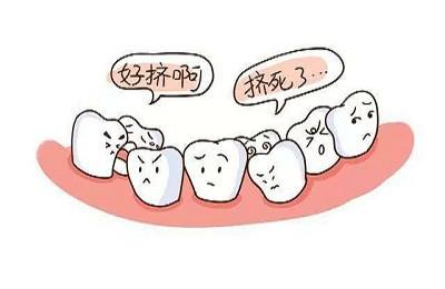 牙齿拥挤拔牙矫正