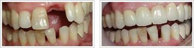 种植牙对比图